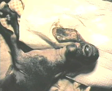 Koza (cyklopia)